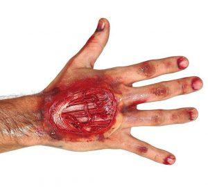Jazva - Zranenie na ruke